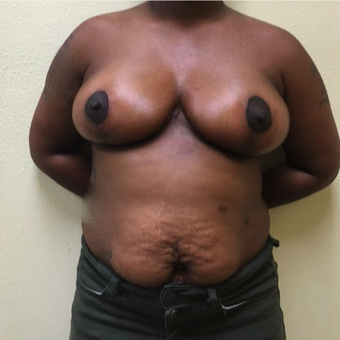 25-34 year old woman treated with Breast Reduction after 3214480