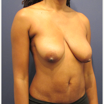 35-44 year old woman treated with Breast Lift before 3709501