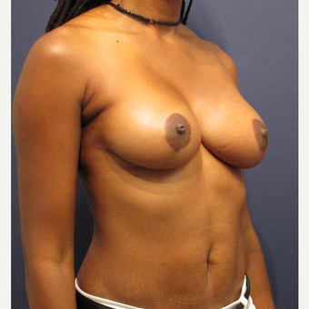 35-44 year old woman treated with Breast Lift after 3709501