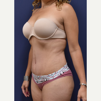 35-44 year old woman treated with Liposuction after 3213954