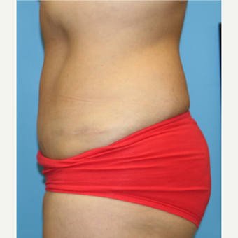 44 year old woman treated with Tummy Tuck after 3582442