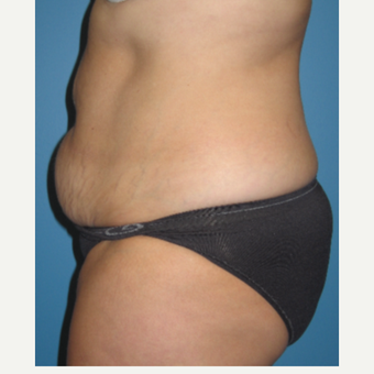 44 year old woman treated with Tummy Tuck before 3582442
