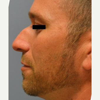 25-34 year old man treated with Rhinoplasty before 3182669