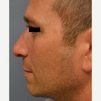 25-34 year old man treated with Rhinoplasty after 3182669