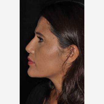 25-34 year old woman treated with Rhinoplasty 10 days post-op after 3452304