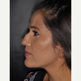 25-34 year old woman treated with Rhinoplasty 10 days post-op before 3452304