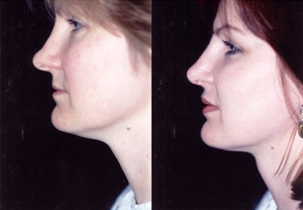 37-year-old woman treated with Facial Fat Transfer. after 574288