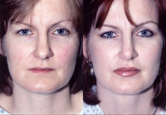 37-year-old woman treated with Facial Fat Transfer. before 574288