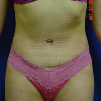 35-44 year old woman treated with Tummy Tuck after 3287620