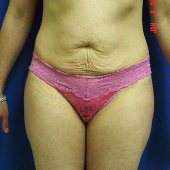 35-44 year old woman treated with Tummy Tuck before 3287620