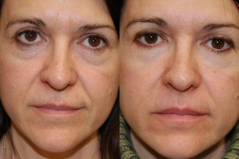 Non-Surgical Facial Rejuvenation with Silikon-1000 before 154690