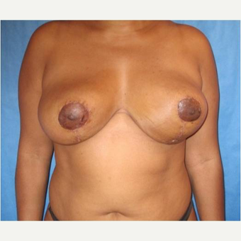 35-44 year old woman treated with Breast Reduction after 3727181