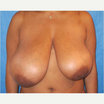 35-44 year old woman treated with Breast Reduction before 3727181