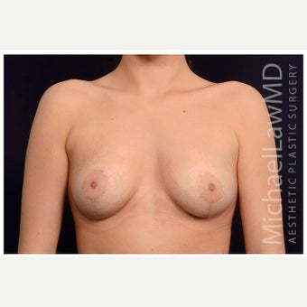 18-24 year old woman treated with Breast Fat Transfer after 2075722