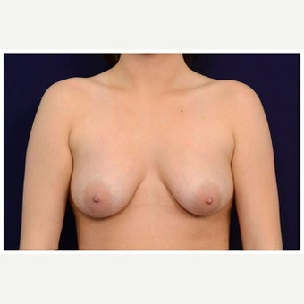 18-24 year old woman treated with Breast Fat Transfer before 2075722