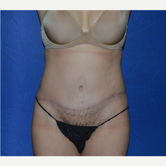45-54 year old woman treated with No-Drain Tummy Tuck after 3655841