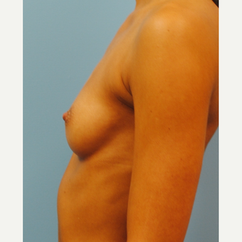 27 year old who had a 300cc high profile breast augmentation with silicone implants.  A to full B. before 3304352