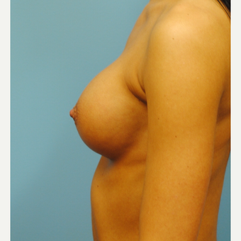 27 year old who had a 300cc high profile breast augmentation with silicone implants.  A to full B. after 3304352