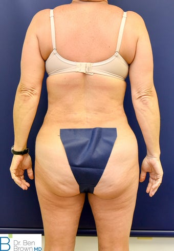45-54 year old woman treated with Liposuction of the abdomen, flanks and medial thighs. 3486879