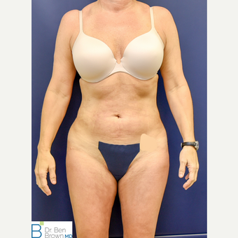 45-54 year old woman treated with Liposuction of the abdomen, flanks and medial thighs. after 3486879