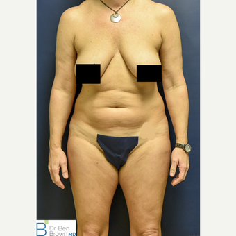45-54 year old woman treated with Liposuction of the abdomen, flanks and medial thighs. before 3486879