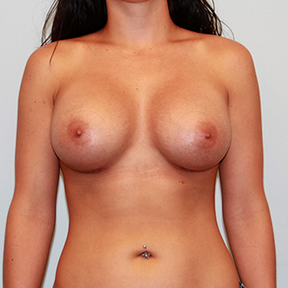 Breast Implants after 2075833