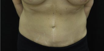 55-64 year old woman treated with Tummy Tuck after 3181938