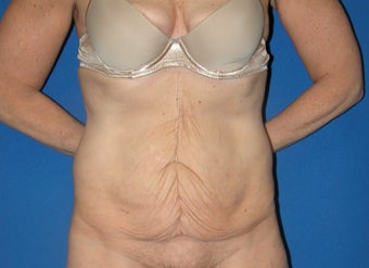 55-64 year old woman treated with Tummy Tuck before 3181938