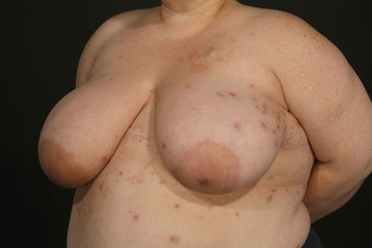 Breast Reconstruction before 927721