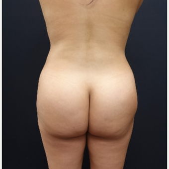 25-34 year old woman treated with Butt Augmentation before 3286181