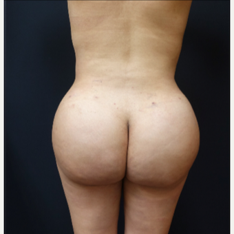 25-34 year old woman treated with Butt Augmentation after 3286181