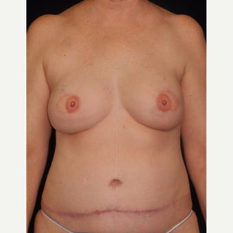 56 y/o - Immediate Bilateral DIEP Breast Flap Reconstruction