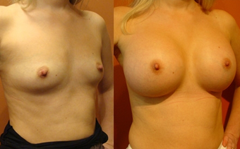 Breast Implants before 974274