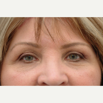55-64 year old woman treated with Brow Lift (Eyebrow lift)
