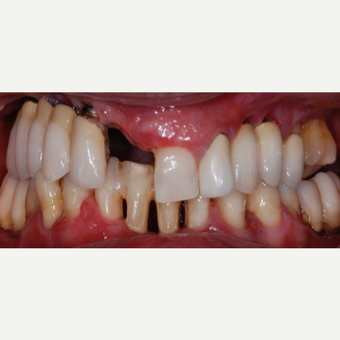 55 year old woman treated with All-on-4 Dental Implants before 2013276