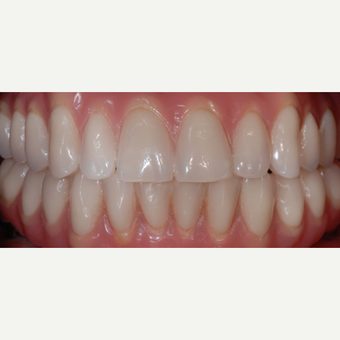 55 year old woman treated with All-on-4 Dental Implants after 2013276