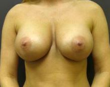 36 year old female with 350 cc high profile silicone breast implants after 665320