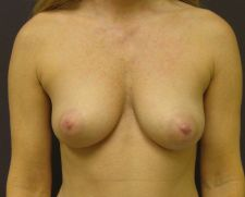 36 year old female with 350 cc high profile silicone breast implants before 665320