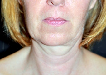 50 Year Old Female treated with Ultherapy for sagging Neck before 1026757
