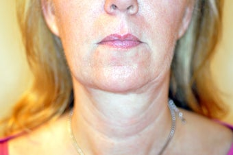 50 Year Old Female treated with Ultherapy for sagging Neck after 1026757