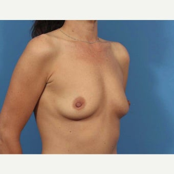 35-44 year old woman treated with Breast Augmentation 1589910