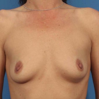 35-44 year old woman treated with Breast Augmentation before 1589910