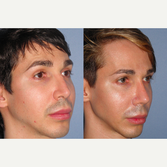 35-44 year old man treated with Revision Rhinoplasty before 3521875