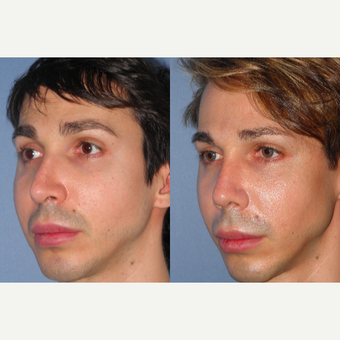 35-44 year old man treated with Revision Rhinoplasty after 3521875