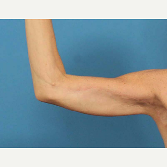 45-54 year old woman treated with Arm Lift (Brachioplasty) after 3787343