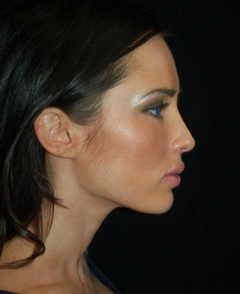 Nose Surgery - Rhinoplasty after 1253183