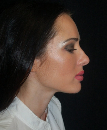 Nose Surgery - Rhinoplasty before 1253183