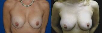 44 year old woman treated with Breast Augmentation before 2990388