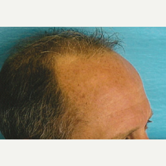 35-44 year old man treated with Hair Transplant before 3494902