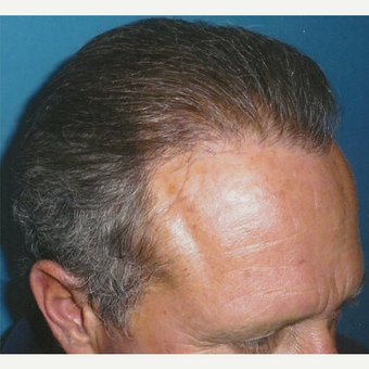 35-44 year old man treated with Hair Transplant after 3494902